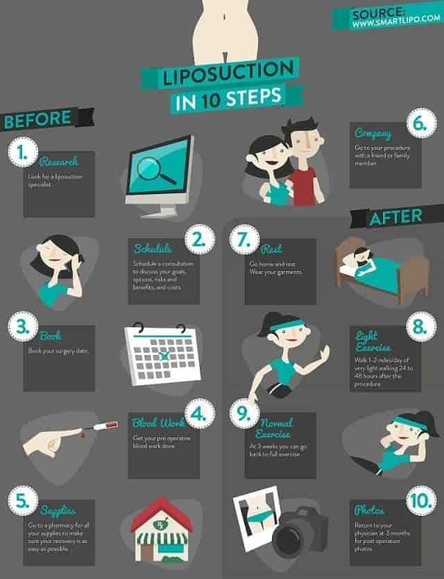 infographics-04