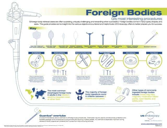 Foreign Body Infographic - 760996A